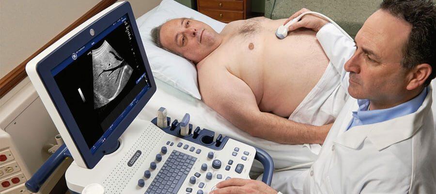 karaciger ultrasonu